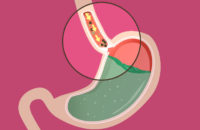 Illustration of food stuck before emptying from esophagus - achalasia