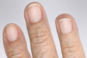 6 Things Your Nails Say About Your Health – Health Essentials from