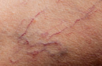 Spider veins example
