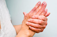 Clasped woman's hands suffering from chilblains
