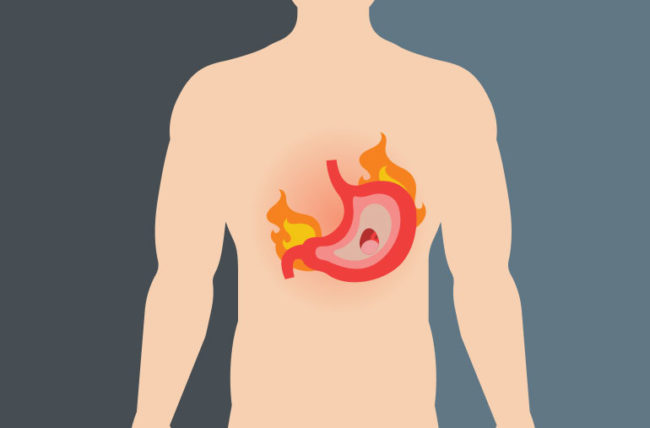 Illustration of stomach on fire in man's body
