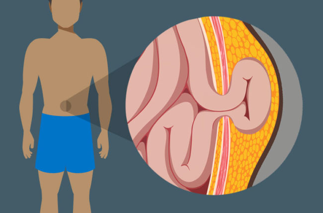 Hernia presenting in the stomach from the intestines breaching the muscular wall
