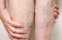 Varicose Veins: 7 Myths You Shouldn't Believe – Health Essentials