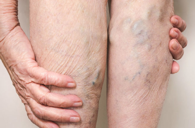 Woman messages the vericose veins in her legs