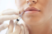 Lip filler injection on woman's mouth
