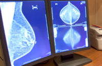 Mammography images on computer screens