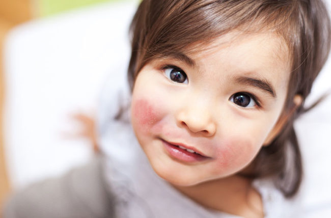 Little girl with chapped cheeks - fifth disease