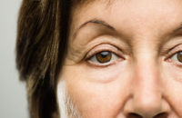 older woman closeup of her eyelids and wrinkles