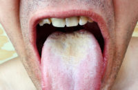 Thrush on tongue in man's mouth