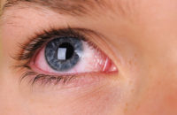 Woman's red eye closeup