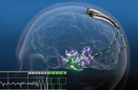 RNS Epilepsy brain stimulation illustration