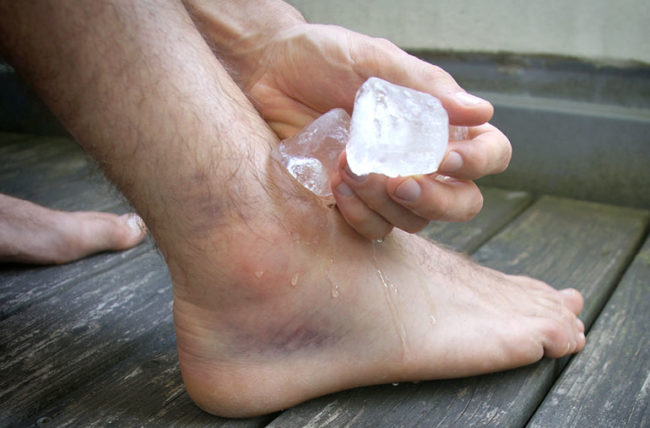 Treating sprain with ice