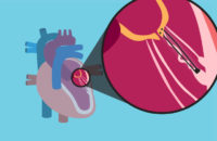 Mitral Valve chords shown in heart illustration