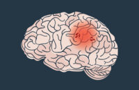 Illustration of brain showing an ischemic stroke episode