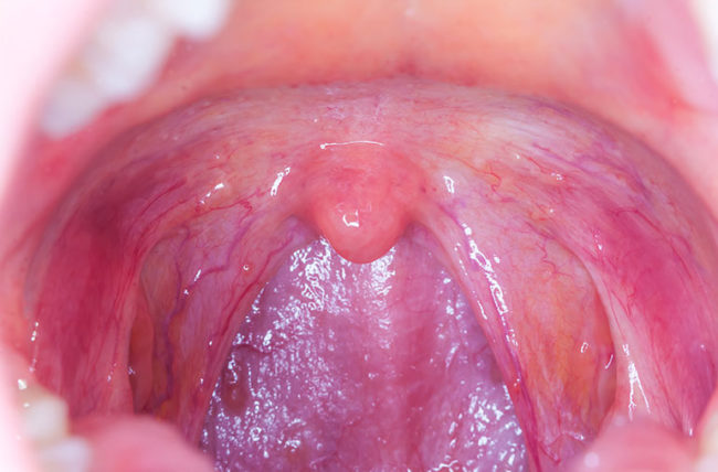 hpv and throat cancer)
