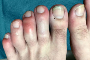 Are Covid Toes And Rashes Common Symptoms Of The Coronavirus Health Essentials From Cleveland Clinic
