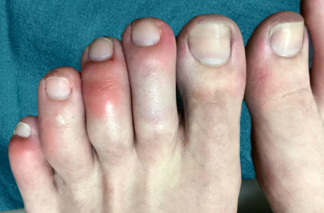 Are COVID Toes and Rashes Common Symptoms of the Coronavirus ...