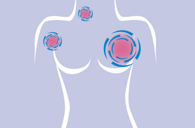 breast cancer spreading