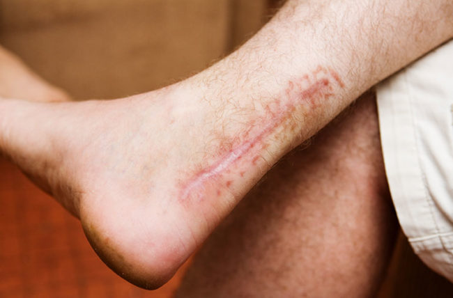 scarring, preventing scars, scar prevention, types of scars, surgery scars, acne scars, keloid scars